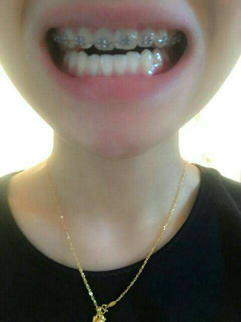 如果只矫正单排牙齿,一排的牙齿产生了位移,另一排则没有发生变化